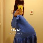 陣痛促進剤2回目。双子妊娠38w3d